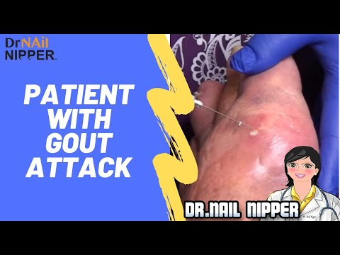 What Is Gout?  Patient With Gout Attack