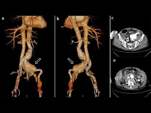 arteriovenöse fistel