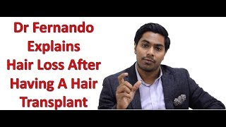 Hair falling out after a hair transplant thumbnail