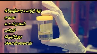 Your Urine Says About Your Health   Urine: Color, Odor, and Your Health   Healthy Life -Tamil.