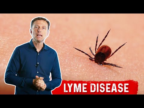 7 Weird Symptoms of Lyme Disease that You Need to Know