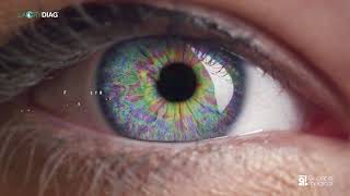 LacryDiag, Diagnostic complet de la sécheresse oculaire