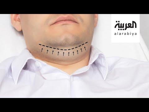 صباح العربية | الذقن المزدوجة أبرز الأسباب للجوء الرجال الى جراحة التجميل  - 14:57-2020 / 8 / 10