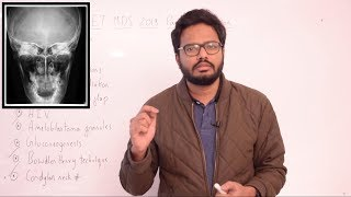 Paper Discussion 19 | NEET MDS 2019
