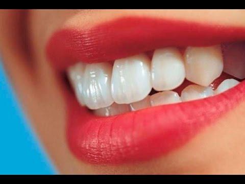 وصفة زيت الزيتون لتبييض الأسنان