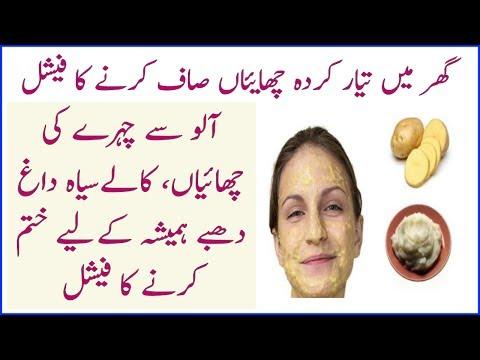 Aalu Se Chahry Ki Chaiyan Or Siyah Dagh Dhaby Khtam Karny Ka Ilaj | Dr Umme Raheel