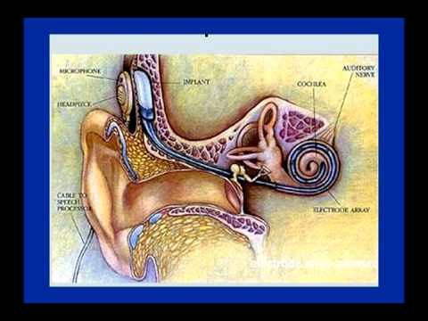 The Sound of Silence: Hearing Loss and Hearing Aids