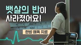 [닥터스] 한방 해독치료 대박 비법 공개! (부산 진한…