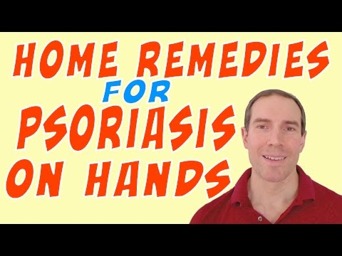 Home Remedies For Psoriasis On Hands