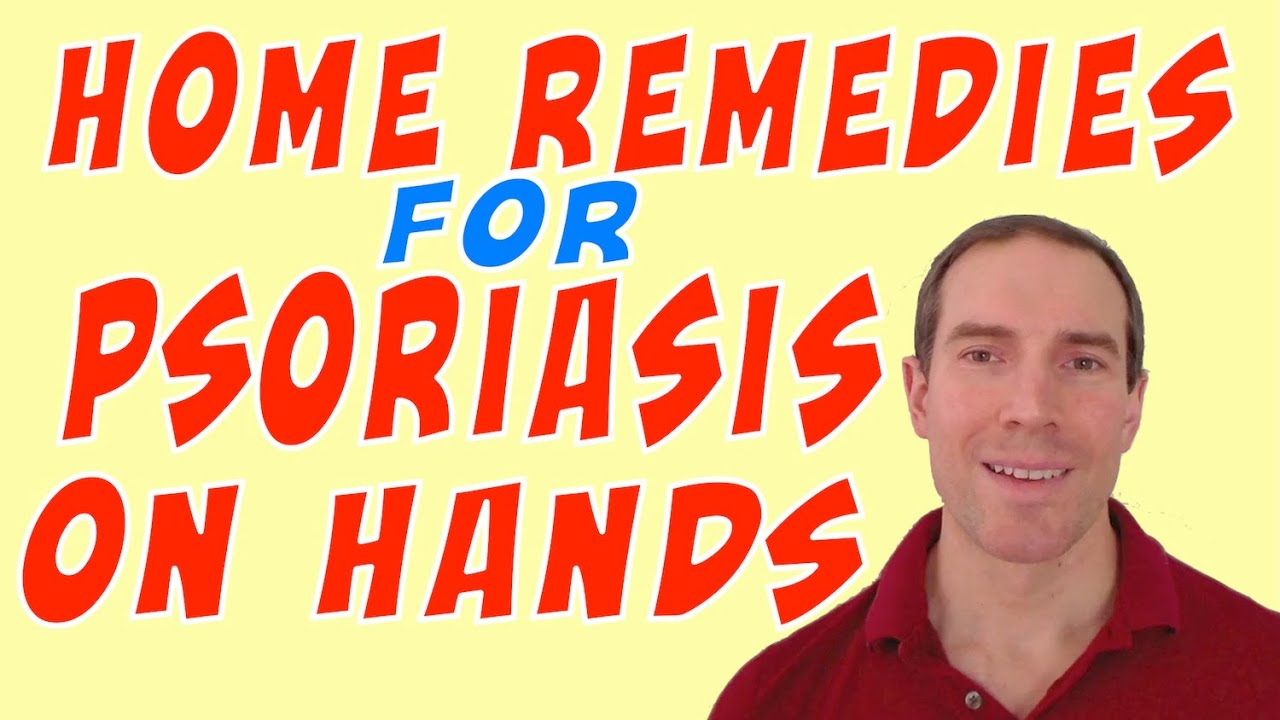 Home Remedies Psoriasis On Hands