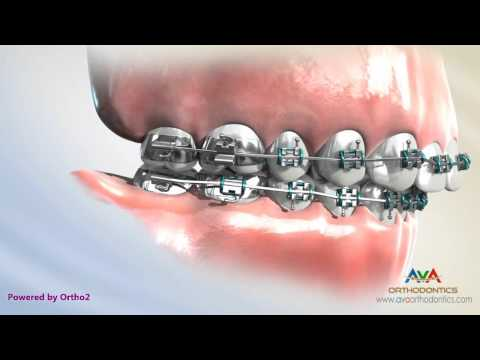 Overjet (AKA Overbite) Treatment - Headgear vs. Forsus - Orthodontic Device