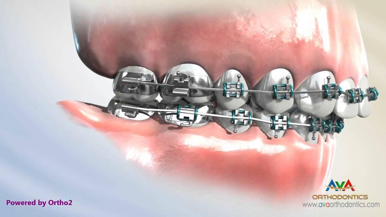 Overjet Teeth 101 Correction Procedure And Costs