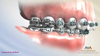 Headgear vs. Forsus - Orthodontic Treatment