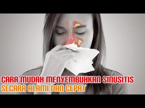 cara-menyembuhkan-sinusitis-secara-cepat-dan-alami