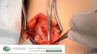 Комбинированная флебэктомия при трофических изменениях голени(, 2015-01-28T15:42:06.000Z)