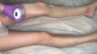 Шугаринг ног за 2 минуты
