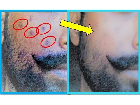 Beauty Tips For Men  Fast Remove Dark Spot From Your Face  Home Remedies For Men In Hindi