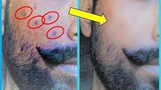 Beauty Tips for MEN / Fast Remove DARK SPOT from your face / Home Remedies for Men in Hindi