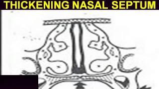DEVIATED NASAL SEPTUM DR. FOHEID ALSOBEI