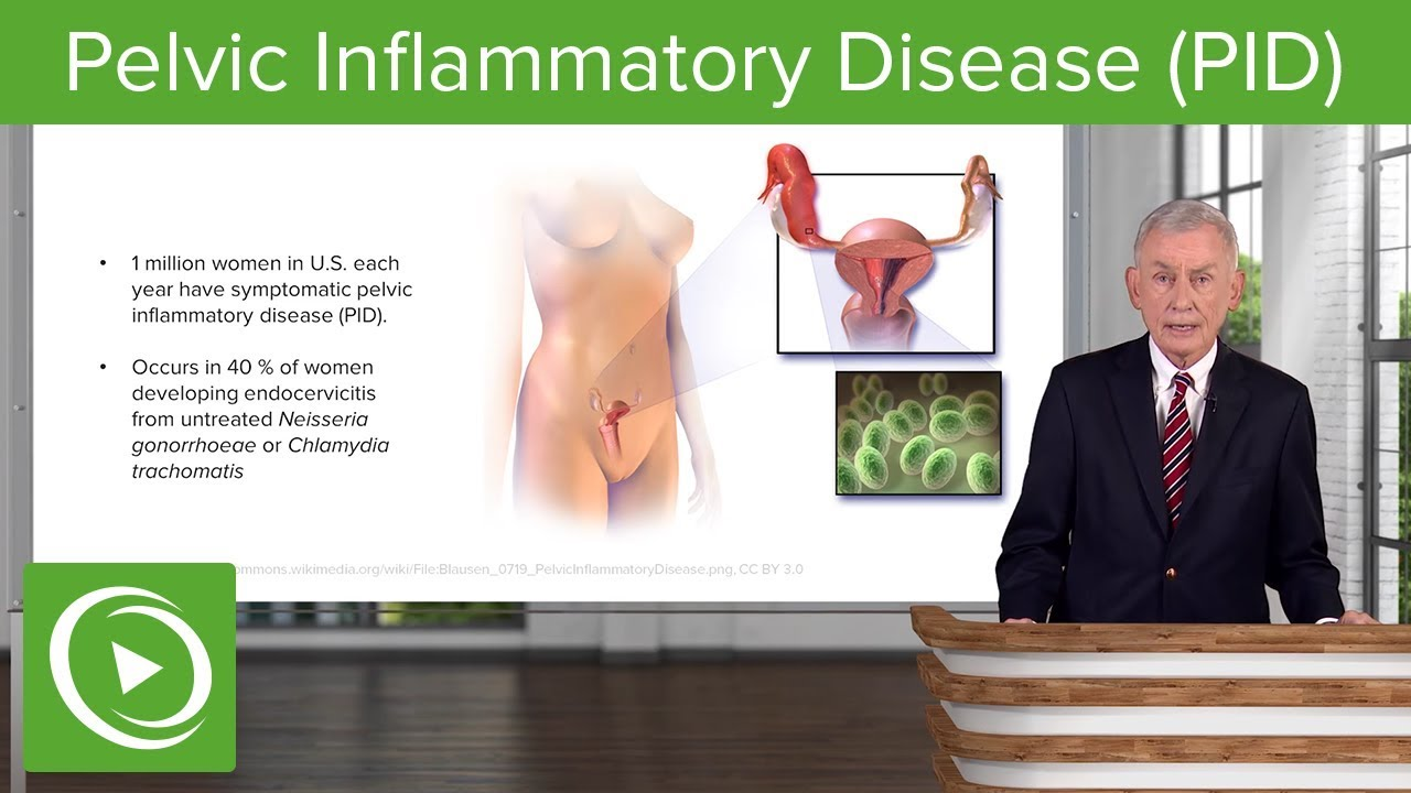 Pelvic Inflammatory Disease (PID) – Infectious Diseases | Lecturio