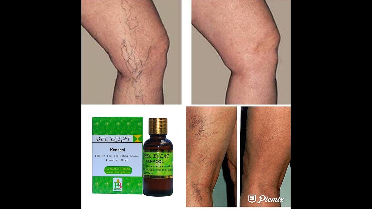 how to treat varicose veins fast green vein with this 2 oil youtube