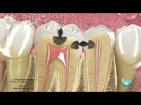 Caries y restauración dental