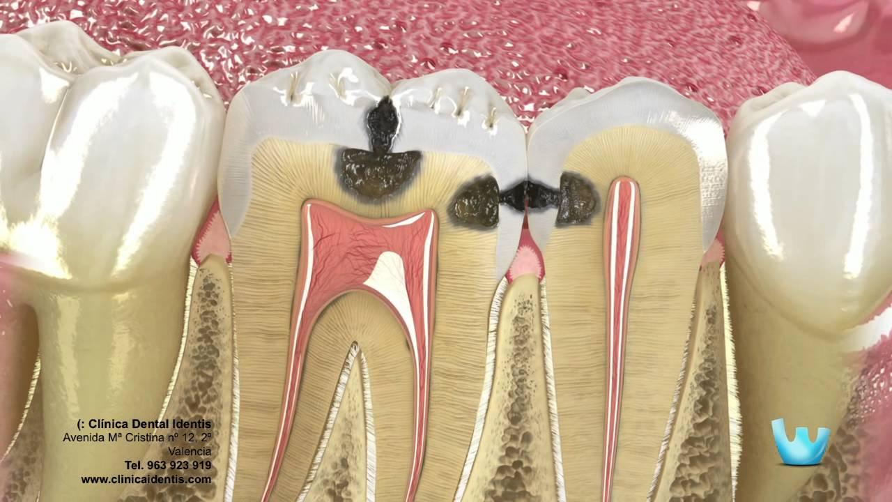 Download Caries y restauración dental