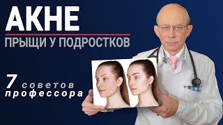 Акне прыщи на лице лечение причины 7 советов профессора Няньковского как избавиться от угрей