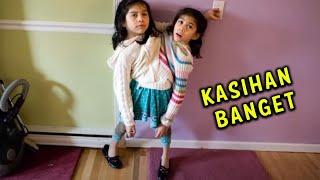 Wanita Kembar Siam Paling Fenomenal   GAK TEGA LIHATNYA