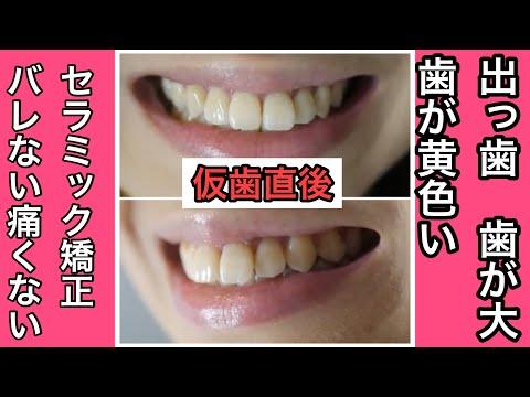 中学校から自分の前歯が大きい事を気にしていた