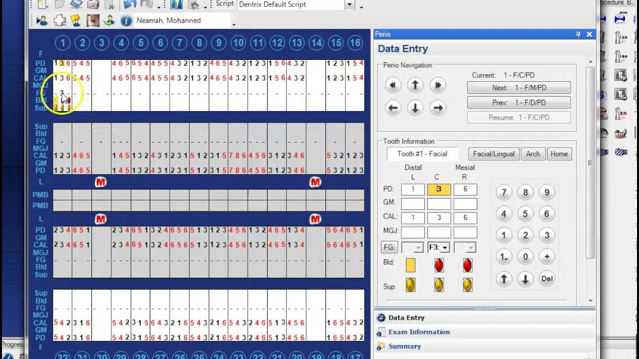 periodontal chart template - dentrix step by step perio charting youtube