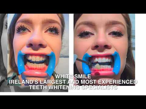 White Smile - Teeth Whitening - Dublin Cork Limerick