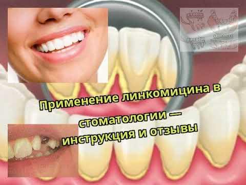 Антибіотики при флюсі зуба: як приймати