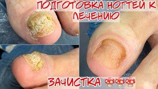 Зачистка ногтя при кератозе Подготовка ногтей перед лечением
