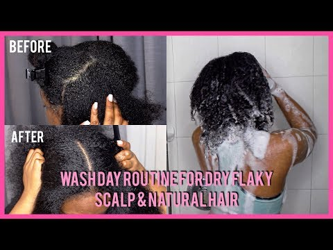 WASH DAY ROUTINE FOR EXTREME DRY FLAKY SCALP & NATURAL HAIR