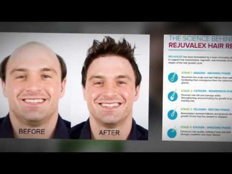 Rejuvalex hair regrowth