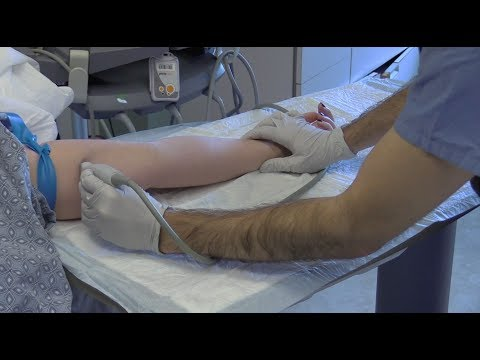 Ultrasound-Guided Peripheral IV Insertion -- BAVLS