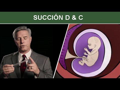 Aborto Quirúrgico durante el Primer Trimestre: Succión D & C, Dilatación y Curetaje