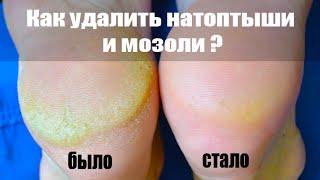 Как удалить натоптыши и мозоли со ступней ног лазерной теркой(, 2014-11-15T11:55:13.000Z)
