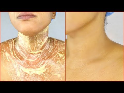 JUST 7 DAYS TO CLEAR DARK NECK, APPLY TO DARK NECK FOR CLEAR WRINKLE FREE NECK, Khichi Beauty