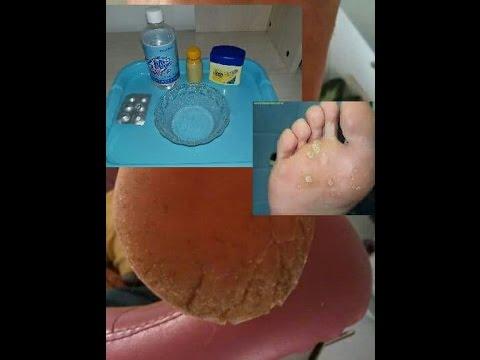 varice sous le pied