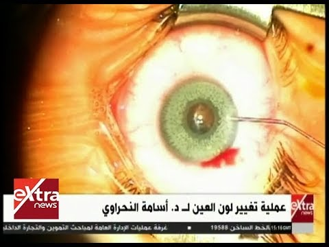 7cd0e417b الأطباء | شاهد.. عملية تغيير لون العين مع د. أسامة النحراوي ...
