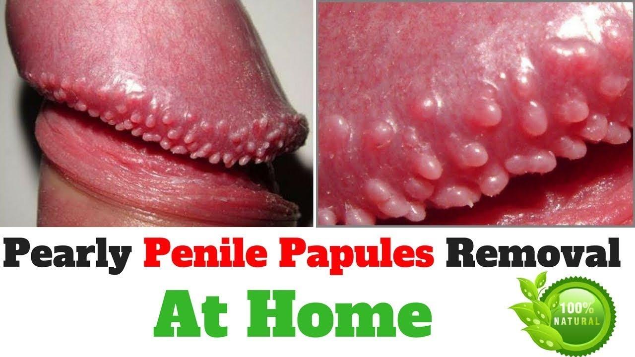 Penile papules penis Pearly Penile