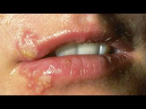 Как быстро избавиться от простуды на губе?