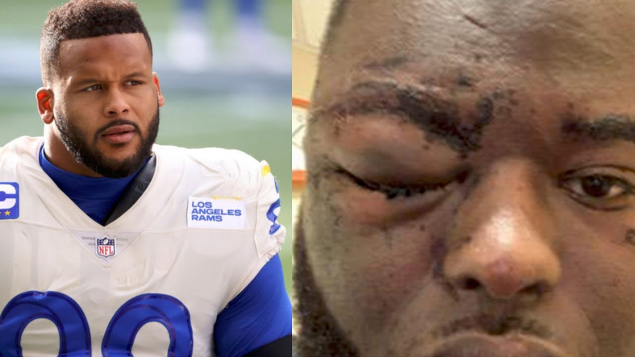 Rams' Aaron Donald facing assault charges after alleged incident at ...
