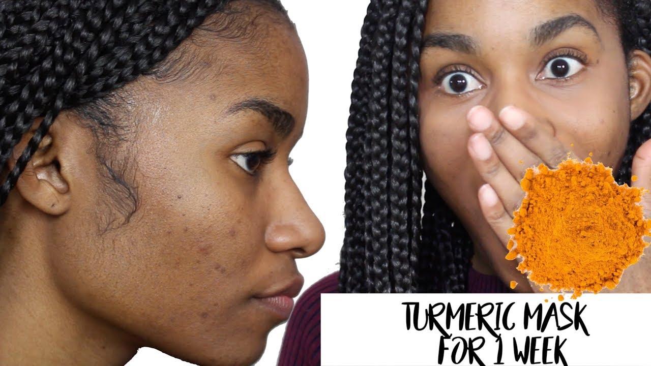 1 WEEK TURMERIC MASK CHALLENGE| Will it fade dark spots ...