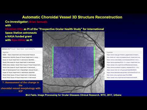 Image Processing for Ocular Diseases Clinical Research