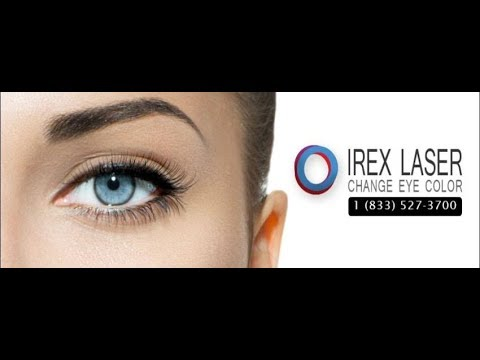 We can change your eye color forever - iREX Laser