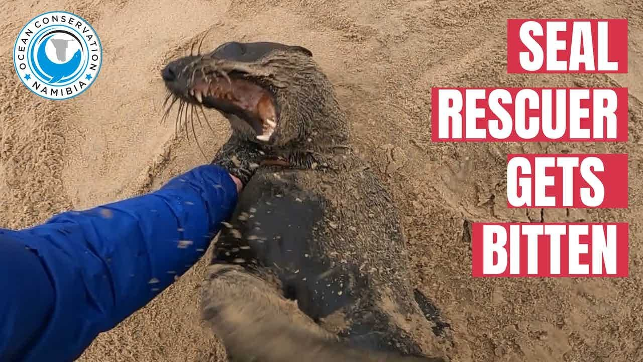 Seal Rescuer gets bitten - still finishes seal rescue
