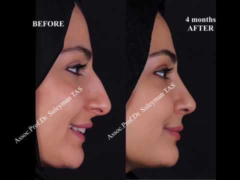Closed & Atraumatic Technique | Rhinoplasty